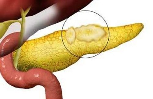 Липома поджелудочной железы