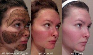 Эффект от маски с бадягой
