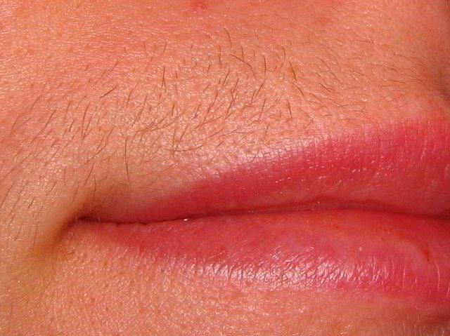 волосы над губой