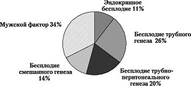 Статистика видов бесплодия