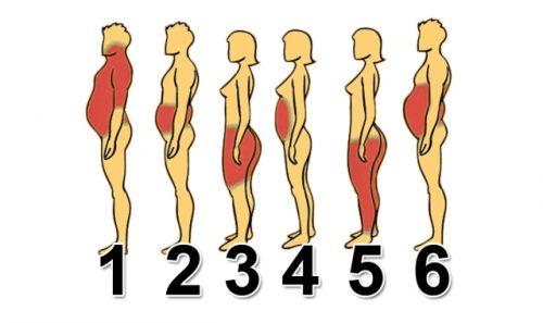 Локализация ожирения