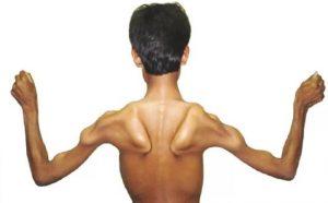 Снижение мышечной ткани