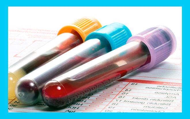 три пробирки с кровью для анализа амг