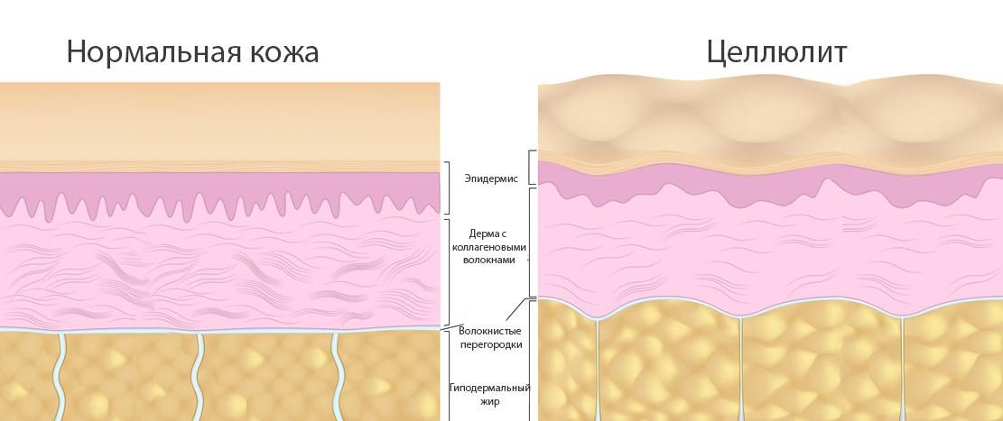 Нормальная кожа и целлюлит