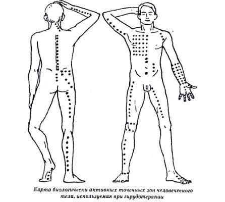 Точечные зоны для гирудотерапии