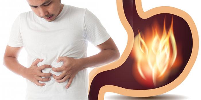 повышенная кислотность в желудке