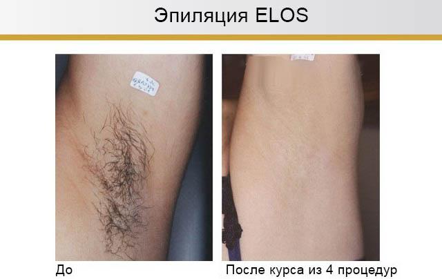 Результаты эпиляции Elos
