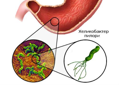 Диффузный гастрит из-за бактерии Хеликобактер пилори