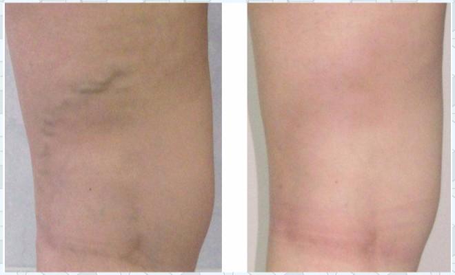 Лазерное лечение варикозной болезни ног
