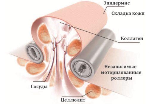 Схема lpg массажа от целлюлита