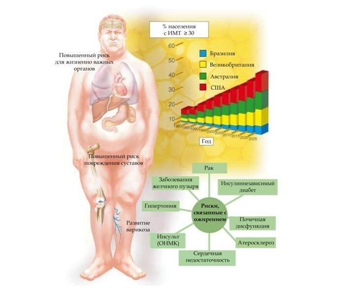 Риски ожирения