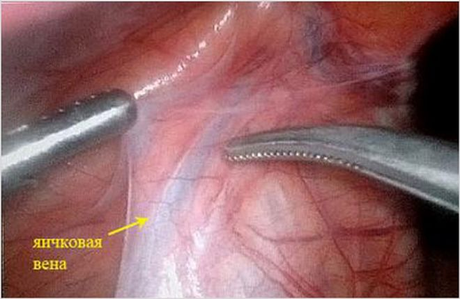 Варикоз вен на левом яичке: симптомы, методы лечения