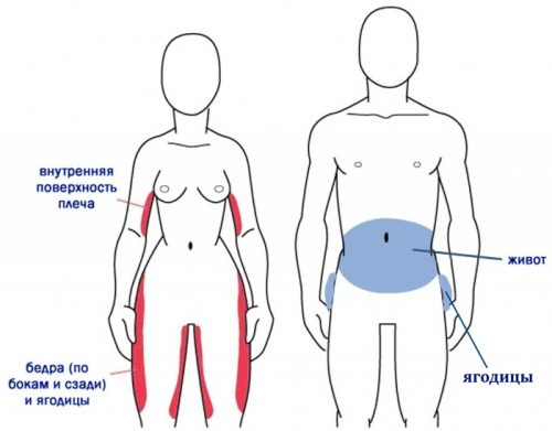 Локализация целлюлита у мужчин и женщин