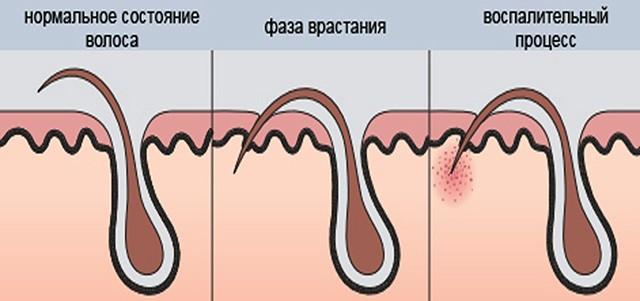 Схема вросшего волоса