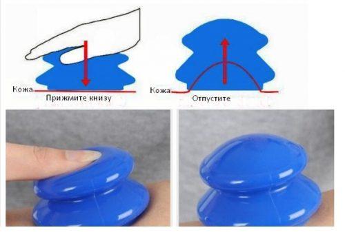 Использование резиновых вакуумных банок