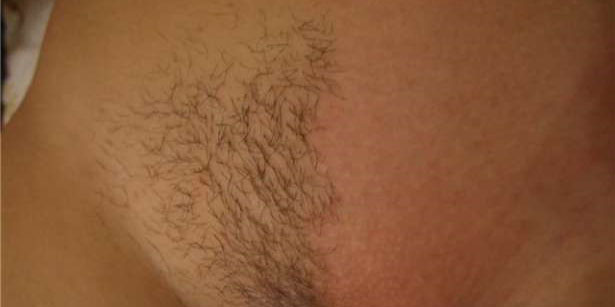 Удаленные волосы