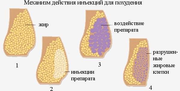 Механизм действия инъекций
