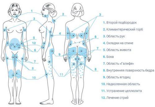 Зоны для озонотерапии