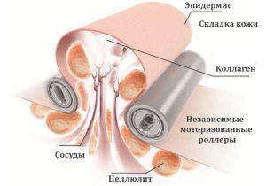 Схема вакуумно–роликового массажа от целлюлита