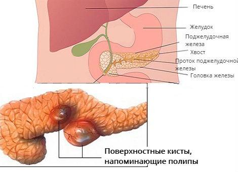 Полип в поджелудочной железе