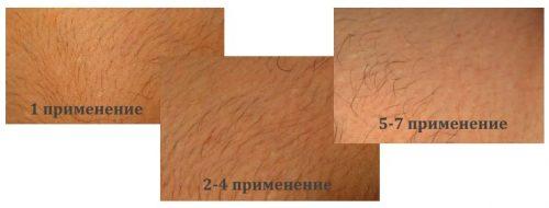 Истончение волос после депиляции