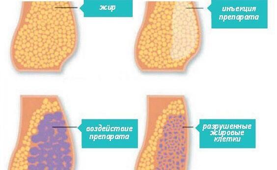 Разрушение жировых клеток