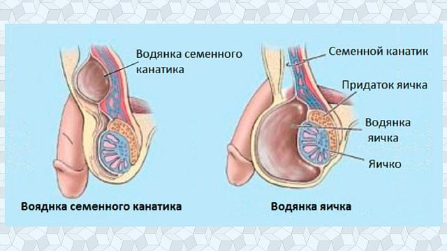 Гидроцеле яичка