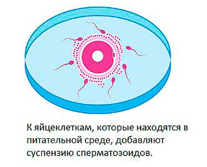 оплодотворение яйцеклеток в специальной емкости