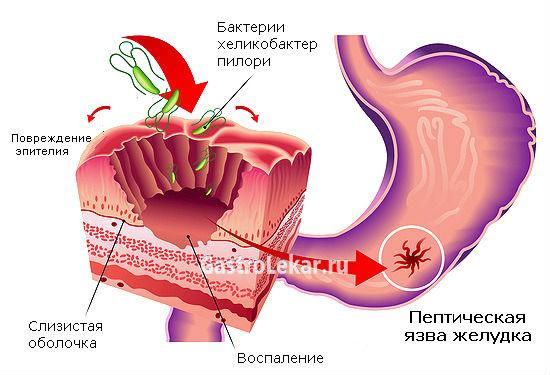 Схема пептической язвы желудка