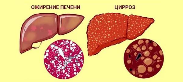 Ожирение и цирроз печени