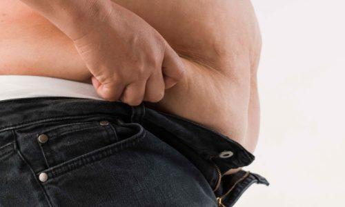 Проблема целлюлита у мужчин