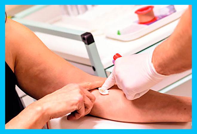 женщина сдает кровь из вены на анализы