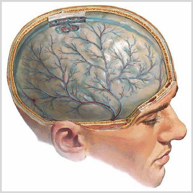 Отек головного мозга и кома