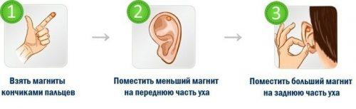 Установка магнитной серьги для похудения