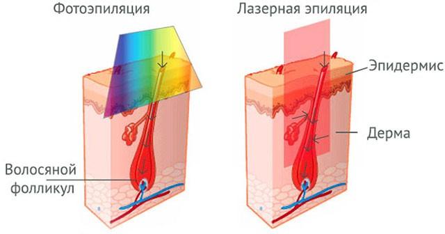 Схема фотоэпиляции и лазерной эпиляции