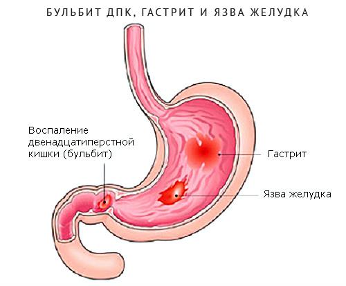 Симптомы умеренно выраженного бульбита