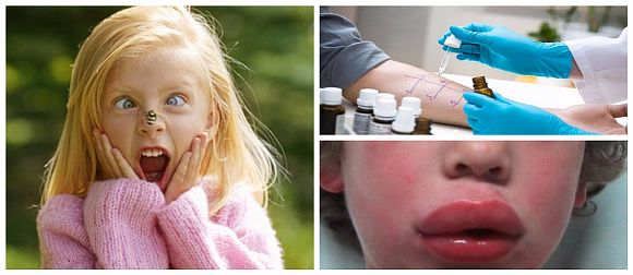 Аллергические отеки