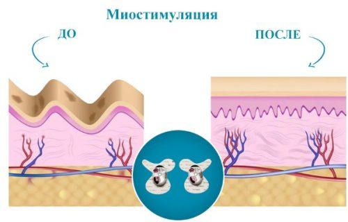 Действие миостимуляции на кожу