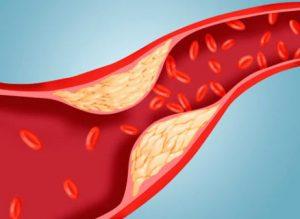 Уменьшение холестерина в крови