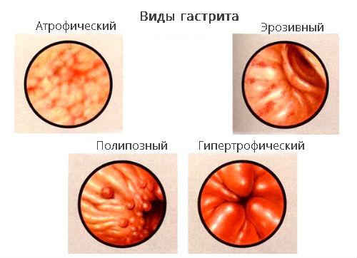 Схема разновидностей гастрита