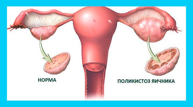 рисунок нормального и поликистозного яичника
