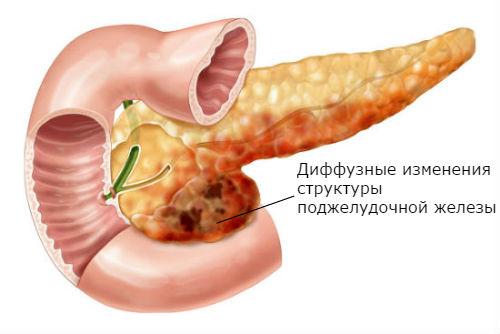 Опасность диффузных изменений структуры поджелудочной железы