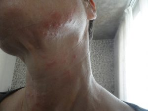 Аллергия на мезотерапию