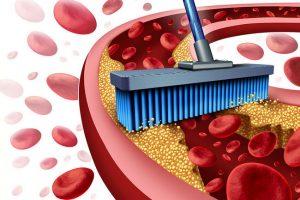 Очищение сосудов от холестерина