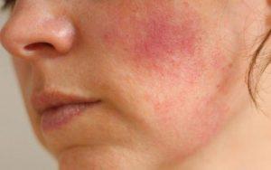 Аллергия на лице