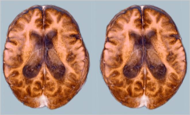 Отек головного мозга, как осложнение после инсульта