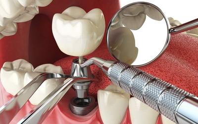 срок службы зубного импланта
