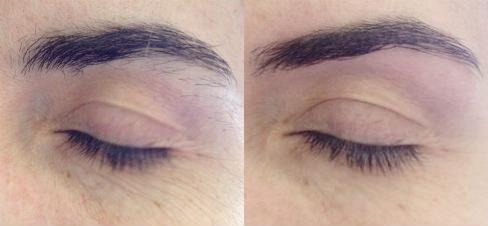 до и после коррекции мужских бровей