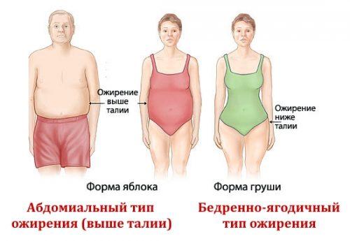 Абдомиальный тип ожирения и бедренно-ягодичный