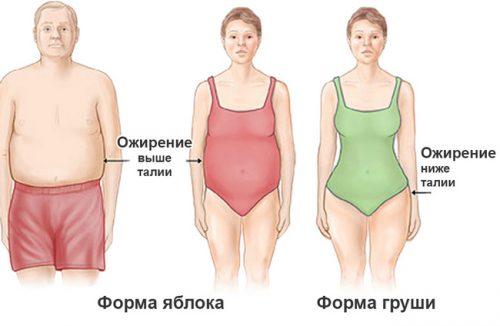 Типы ожирения по форме